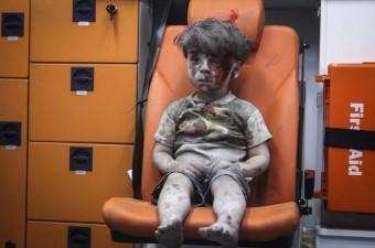 Suriye'de rejim ya da Rus uçakları tarafından Halep'in El Katerji mahallesindeki sivil yerleşim yerine düzenlenen saldırıda 5 yaşındaki Ümran Daknes yaralandı. Yıkılan binanın enkazından yaralı olarak kurtarılan Daknes, sivil savunma ekipleri tarafından bindirildiği ambulansta sahra hastanesine götürülmek üzere bekledi.